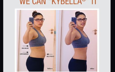 """Dr. Cynthia Salter-Lewis Introduces Body Contouring with Kybella If You Can """" Pinch"""" It… We Can """"Kybella"""" It"""